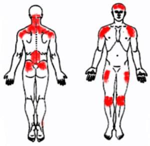 Fibromyalgia-tender-points3